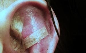 Manson's Ear